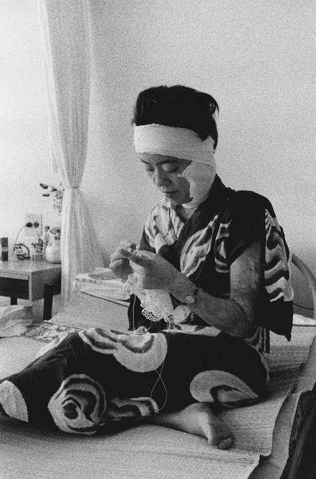 Domon Ken, Paziente in ospedale, 1957 dalla serie Hiroshima. Ken Domon Museum of Photography